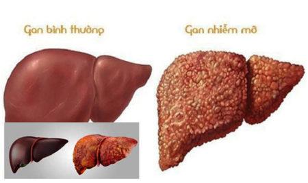 Bệnh gan nhiễm mỡ là gì, gan nhiễm mỡ độ 1, độ 2 và độ 3