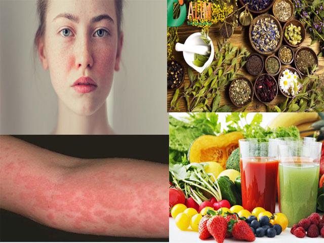 Bị dị ứng da mặt và nổi mẩn ngứa toàn thân nên làm gì